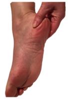 Heel pain / plantar fasciiitis